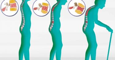 Osteoporoz Nedir ? Nasıl Önlenir ?