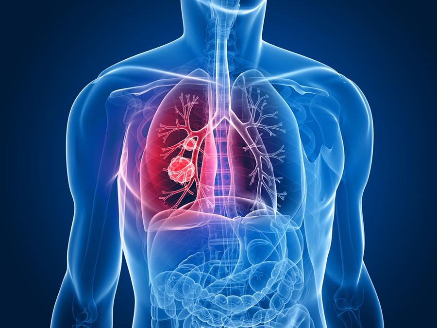 Akciğer Kanseri Nedir ?