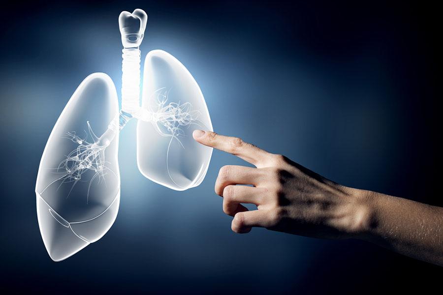 Akciğer Kanseri Tedavisi ?