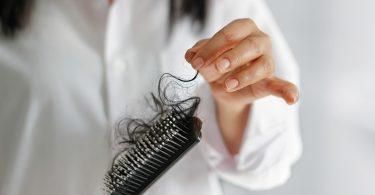 Saç Dökülmesi Nasıl Geçer